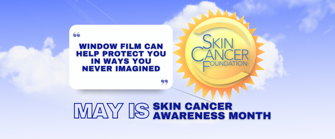 May Is Skin Cancer Awareness Month - See How Window Film Helps - Window Film and Window Tinting Services in Tukwila, Washington